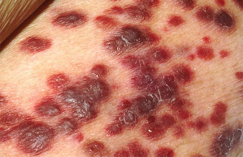 Kaposi's sarcoma on the skin of an AIDS patient